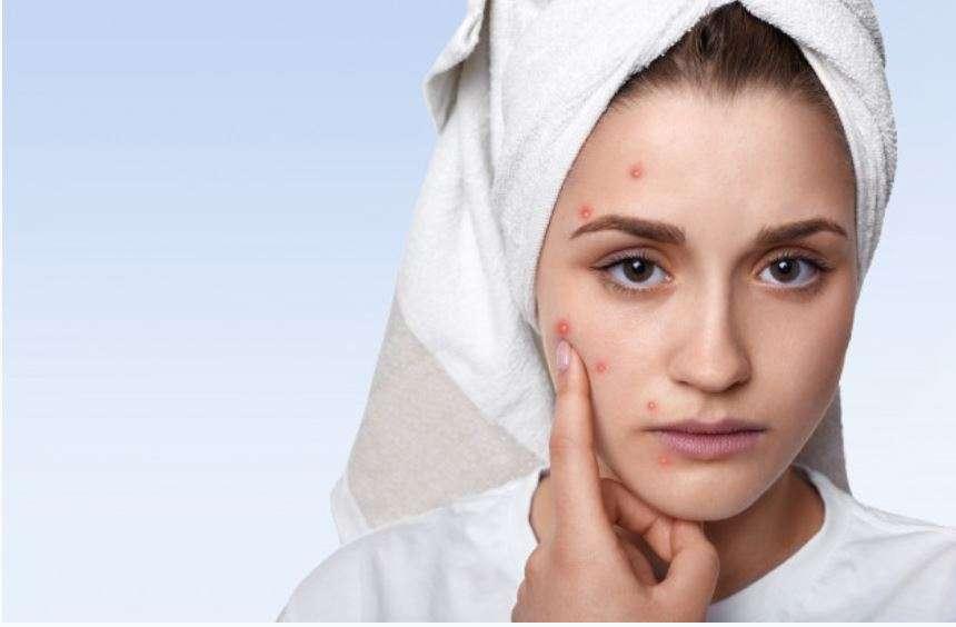 טיפול באקנה | עידית מורנו | קוסמטיקאית פרא רפואית | טיפולי קוסמטיקה | טיפולי אקנה | טיפול פנים